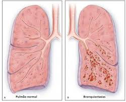 O que é Bronquiectasia por Dr. Rodrigo Athanazio